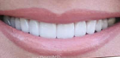 picture after veneers