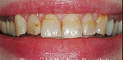 An image of teeth before visitng charlotte's best dentist