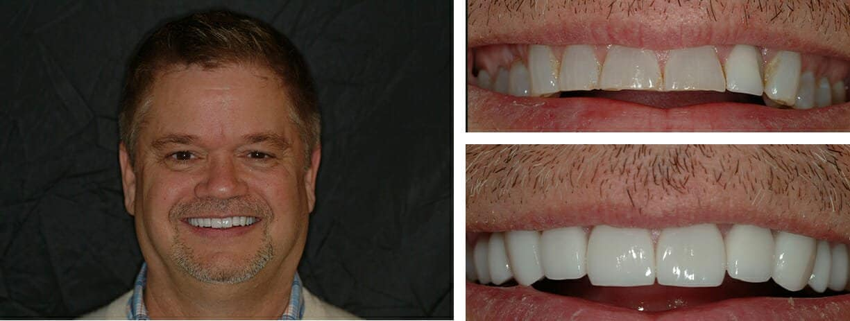 Veneers done in Charlotte, NC by Rossitch Dentistry