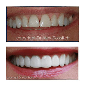 Dilworth dental smile makeover
